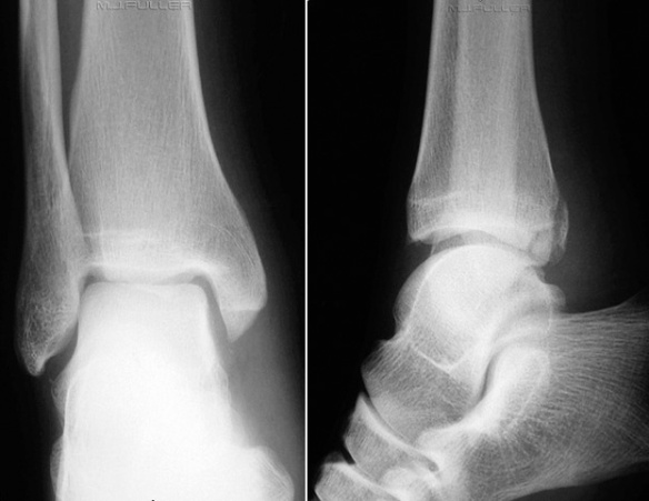 Posterior malleolar fracture - image from wikiradiography.com